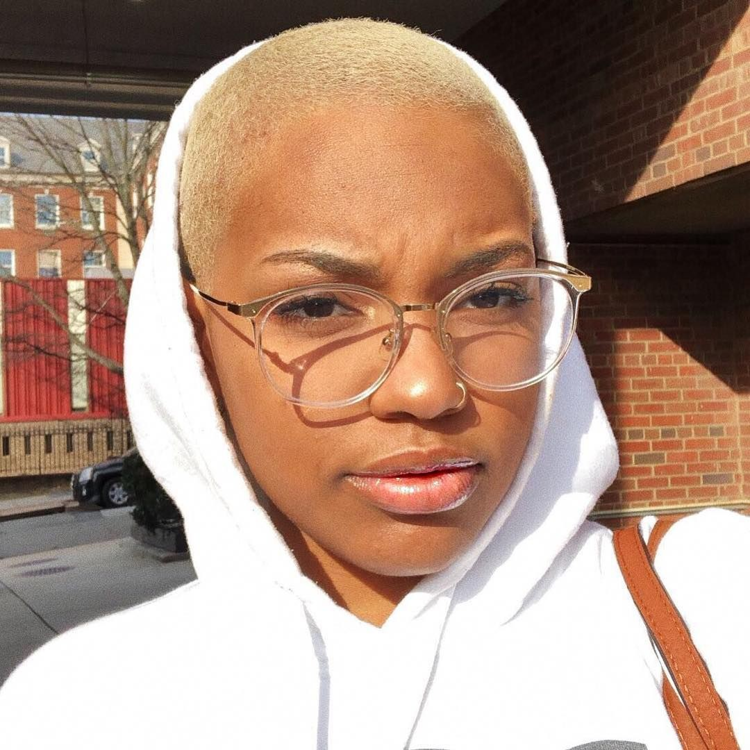 Beautiful Black Women, Hair loss, head hair